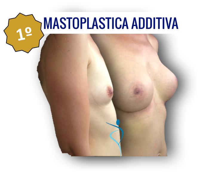 1_mastoplastica-additiva_dridone