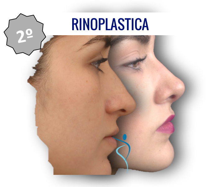 2_rinoplastica_dridone