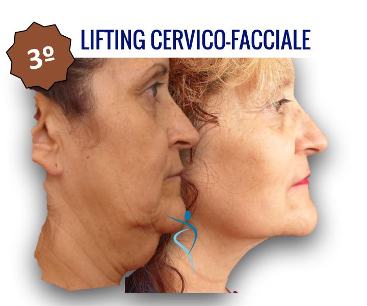 3_lifting_cervico_facciale_dridone