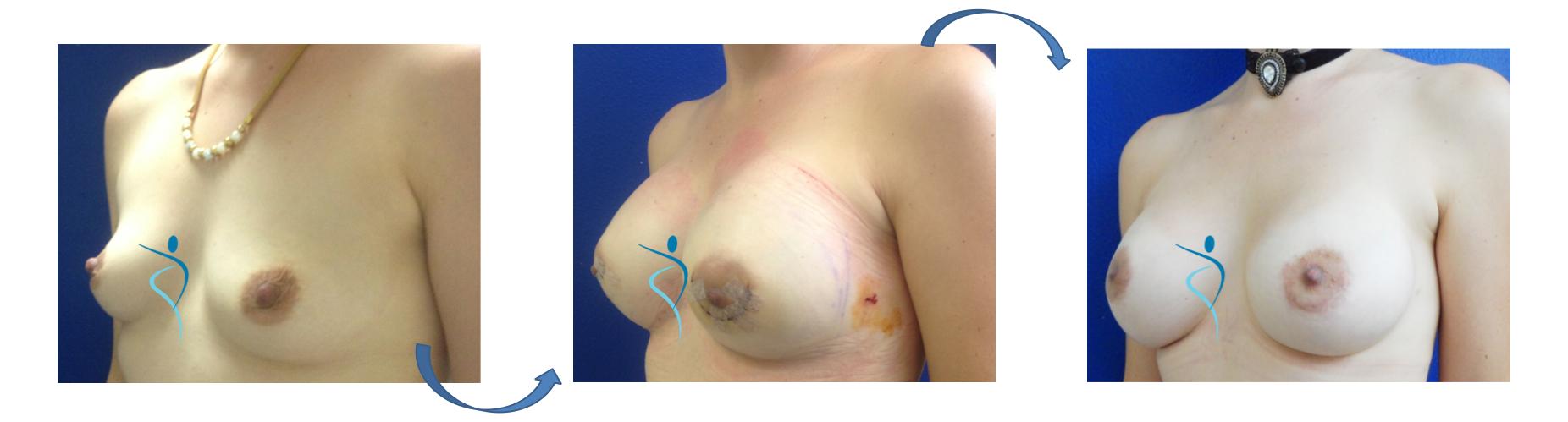 risultati chirurgia plastica idone